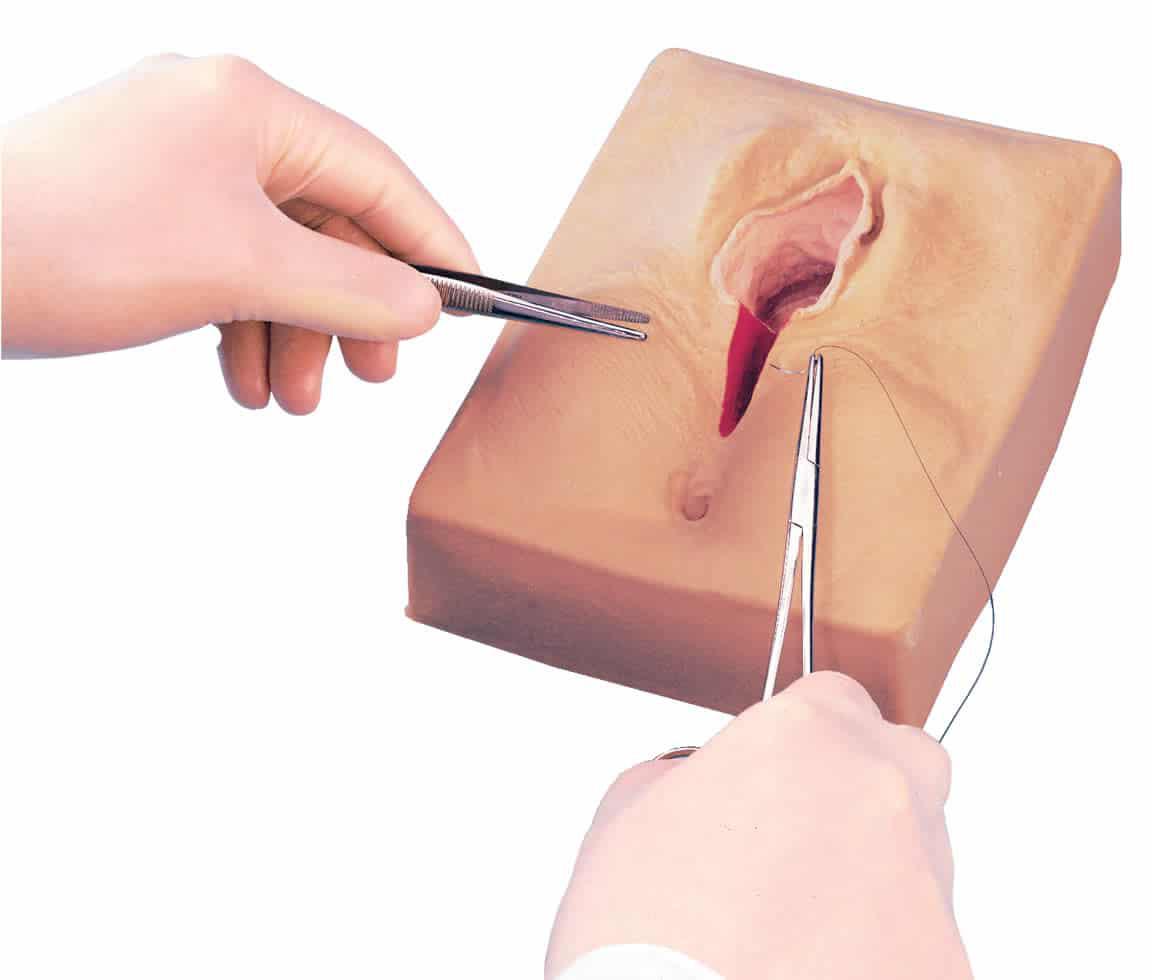 Perineoplasti